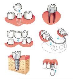 Proteses dentárias