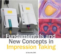Dr. Gary Alex discusses various impression materials and how to improve the impression-taking process.