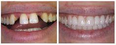 Before after teeth bonding 001 - Zahnaufhellung - Zahnpflege Teeth Bonding, Restorative Dentistry, Affordable Dental, Tooth Replacement, Missing Teeth, Dental Veneers, Emergency Dentist, Smile Makeover, Dental Health