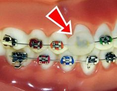 How long will my braces hurt? #braces #answers