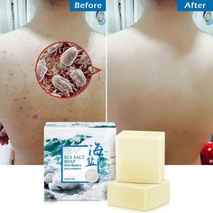 Removal Pimple Pore Acne Treatment Sea Salt Soap Cleaner Moisturizing Goat Milk Soap Face Care Wash Basis Soap in 2020 Facial Cleanser, Moisturizer, Acne Soap, Sea Salt Soap, Le Psoriasis, Whitening Soap, Clear Pores, Remove Acne, Skin Tips