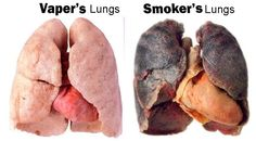 The truth about vaping vs. smoking...