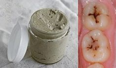 Vyliečte si začínajúce zubné kazy, kameň a choré ďasná bez návštevy lekára, vďaka tomuto prírodnému receptu. - TopNaZdravie.sk Liver Cleanse, Pasta, Doterra, Detox, Healthy Lifestyle, Beauty Hacks, Health And Beauty, Remedies, Homemade