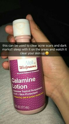Calamine lotion can clear acne and dark marks Beauty Hacks For Teens, Beauty Hacks 2018, Face Skin Care, Tips Belleza, Facial Care, Health And Beauty Tips, Health Tips, Skin Treatments, Spot Treatment