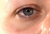 – El jugo del pepino es un remedio común. Se debe aplicar todos los días alrededor de los ojos y lavarse con agua corriente después de 15 minutos.  – Mezclar el jugo de patata con jugo de pepino en cantidades iguales  ayuda si hay hinchazón, junto con las ojeras. Siga el mismo procedimiento.  – Las ojeras también pueden ser tratados mediante la mezcla de jugo de pepino con jugo de limón en cantidades iguales. Aplicar diariamente y lavar con agua después de 15 minutos.