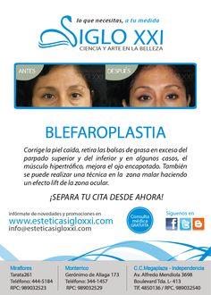 BLEFAROPLASTÍA Para más información visita nuestra pagina web: www.esteticasigloxxi.com ¡Que estas esperando, separa tu cita desde ahora!