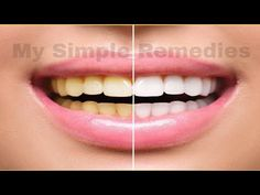A Dentist Friend Told Me How Whiten Your Yellow Teeth in less than 2 Minutes - YouTube #TeethWhiteningTips