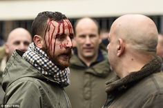 At least one supporter, left, was injured on his way into White Hart Lane this afternoon before today's game