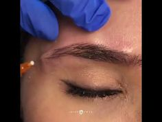 brow lift botox eyebrows EyeBrow Lift using Filler with Jason Emer MD Korean Eyebrows, Guys Eyebrows, Straight Eyebrows, How To Do Eyebrows, Dark Eyebrows, Arched Eyebrows, Permanent Eyebrows, Bleached Eyebrows, Thicker Eyebrows
