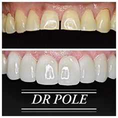 f200b62933 This patient had worn her front teeth down from years of grinding. This had  resulted