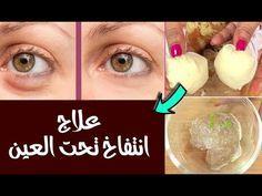 علاج انتفاخ تحت العين ٨ وصفات تم تجربتها ستحل المشكلة نهائي عند النساء Health