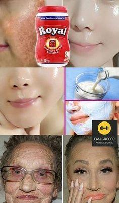 Botox japonés casero para quitar 20 años de arrugas y blan