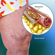Guide to Blood Clots