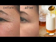 VERY STRONG ANTI AGEING TREATMENT FOR WRINKLES, EYE CIRCLES & FINE LINES - YouTube