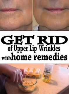 Get Rid of Upper Lip Wrinkles with Home Remedies - Wiki Remedies: