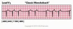 ECG Interpretation - 43 Classic Wenckebach