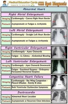 Chest X-Ray Spot Diagnosis Chart: abnormal Heart Radiology Cardiology Emergency Nursing Radiology Schools, Radiology Student, Radiology Imaging, Medical Imaging, Radiology Humor, Nursing Assessment, Cardiac Nursing, Ob Nursing, Pharmacology Nursing