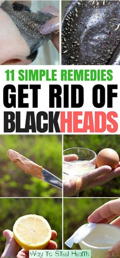 Common and annoying, blackheads occur when your pores become clogged with excess sebum (an oil created by the sebaceous glands that keeps skin supple) and dead skin cells. The difference between a black head and a white head is simply whether or not the pore is open or closed. If the pore is open, the... Continue Reading →