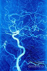 Mri Posters - Carotid Angiography Poster by James Cavallini