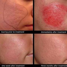 Acne scars are NOT permanent, thanks to Microneedling! Microneedling is done wi