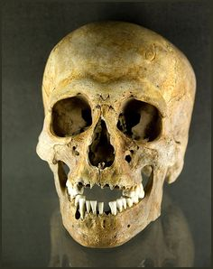 Viking skull in York, England 1000 AD. by hawkgenes, via Flickr