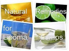 Natural Remedies for Lipoma Lumps