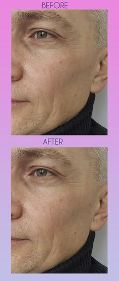 Eliminate of wrinkles on the face Rich expression , outflow of collagen protein Make you look 5 years older , Collagen Protein, Beauty Cream, Anti Aging Tips, Skin So Soft, Acne Scars, 5 Years, Beauty Skin, Skin Care Tips, Hair Care
