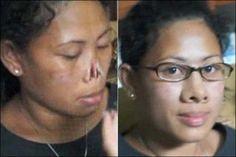 Mulher que viveu 3 anos sem nariz ganha prótese   Notícias da Rede