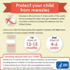 Measles is still common in many parts of the world. People 6 months of age and older should be protected against #measles before traveling outside the United States.  #charlottepediatricclinic