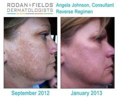 rodan and fields before and after pictures - Reverse Regimen Using this and getting amazing results!!! Go to: Lorinwestlund.myrandf.com