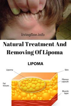 https://livingfine.info/natural-treatment-and-removing-of-lipoma/
