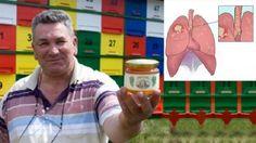 Unii cu morcovi, alții folosind cânepă sau curcuma și multe altele. Însă, există un om care s-a vindecat de cancer cu miere.