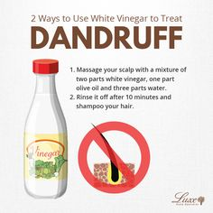 You think vinegar is only for cooking? It can remove your dandruff too! Actually, white vinegar is one of the best home treatments for dandruff. It contains acetic acid that prevents fungi from growing on your scalp. Here's how you can use vinegar to trea Dry Scalp Remedy, Dandruff Remedy, Itchy Scalp, Hair Growth Treatment, Home Treatment, Hair Treatments, How To Remove Dandruff, Getting Rid Of Dandruff, Hair