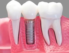 How Dental Implants are being made ? Oral care,Single tooth implant,Dental implant,How Dental surgery is done?Dentist,Whats the process of dental implant? Dental Health, Dental Care, Oral Health, Health Care, Teeth Implants, Dental Implants, Dental Hygienist, Dental Humor, Root Canal Treatment