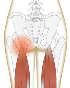 """A literal """"pain in the butt"""" (injury to the hamstring tendon) is a common yoga injury. How can we use yoga for hamstring pain without re-injuring the area?"""