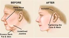 Liposuction is a popular technique used in the cosmetic field to remove excessive fat in the different parts of the body. There are different types of Liposuction surgeries and so, the right procedure. Hair Transplant In India, Hair Transplant Surgery, Hair Fall Solution, Perfect Body Shape, Neck Lift, Liposuction, Jawline, Fall Hair, Body Shapes