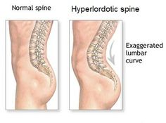 "Lordosis--- fix the ""potbelly"" caused by exaggerated lumbar curve"