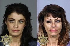 Saving for when they are older & why we stay away from drugs. 15 Shocking Before-After Pics Showing Effects of Drug Abuse