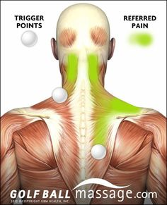 Make Getting A Massage A Relaxing Experience. All over the world, people love getting a massage. Would you be interested in learning a bit more about massage? Massage Tips, Massage Therapy, Lymph Massage, Referred Pain, Psoas Release, Trigger Point Therapy, Neck Pain Relief, Neck And Shoulder Pain, Neck And Back Pain