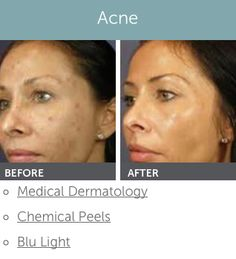 Can look Facial rejuvenation wyoming agree with