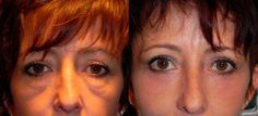 Malar mounds have traditionally been difficult to correct. When eyelid surgery is performed without fixing malar mounds, results often look worse. Malar Bags, Sunken Eyes, Eyelid Surgery, Eye Lift, Under Eye Bags, Before After Photo, Plastic Surgery, Facial, Hair Makeup