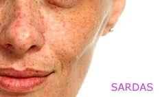 Vida Rosa: Receitas caseiras para clarear manchas no rosto.