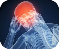 of Americans struggle with recurring headaches at least on an occasional basis. Check out our natural, cut-to-the-chase headache remedies. Headache Causes, Migraine Relief, Headache Remedies, Migraine Cures, Sinus Relief, Pain Relief, Types Of Migraines, Getting Rid Of Headaches, Natural Treatments