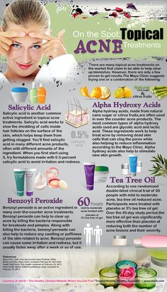 On the Spot: Topical Acne Treatments