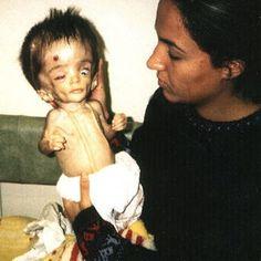 10 anos depois, os estragos das bombas químicas dos EUA no Iraque  Milhões de crianças com defeitos congênitos irreversíveis. Alguns dos artefatos utilizados pelos EUA continuarão matando por mais 4,5 bilhões de anos. E tudo começou em 1971, com Nixon... Segue no BLOGDOJUA