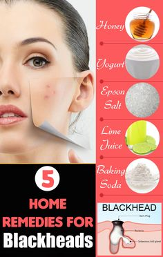 5 Excellent Home Remedies For Blackheads Blackhead Remedies, Home Remedies, Hair Care, Lime, Health, Limes, Health Care, Hair Care Tips, Hair Makeup