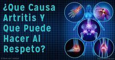 Un nuevo estudio encontró una posible conexión entre las condiciones atmosféricas (temperatura, presión y humedad) y la severidad de los síntomas de la artritis. http://articulos.mercola.com/sitios/articulos/archivo/2016/03/31/la-relacion-entre-la-artritis-y-el-clima.aspx