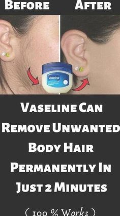 #Body #Hair #Remove #Simple #Trick #Unwanted #Vaseline A Simple Vaseline Trick To Remove Unwanted Hair On The Body #MaleHairRemoval #UnderarmHairRemoval #unwantedhairbody #UpperLipHairRemoval #IngrownHairRemoval