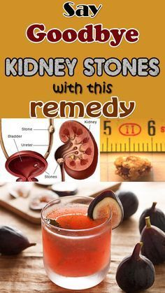 Getzemani, que se rid of kidney stones with this natural homemade remedy.