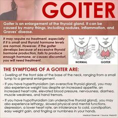 Thyroid Goiter Symptoms * You can get more details by clicking on the image.